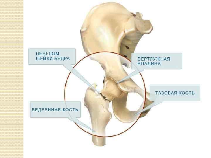 Вколоченный перелом шейки бедра реабилитация уход за лежачим больным после перелома