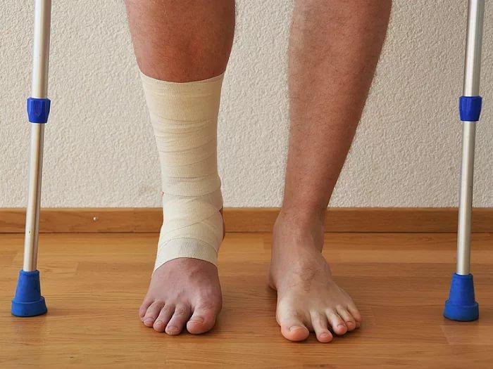 Нога синяя после перелома шейки бедра в частный дом снять в москве